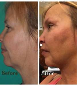 Neck Liposuction Kalsow Plastic Surgery