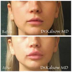 Lip Augmentation using Botox and Fillers