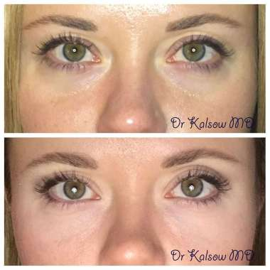 Under Eye Filler NYC – Kalsow Plastic Surgery