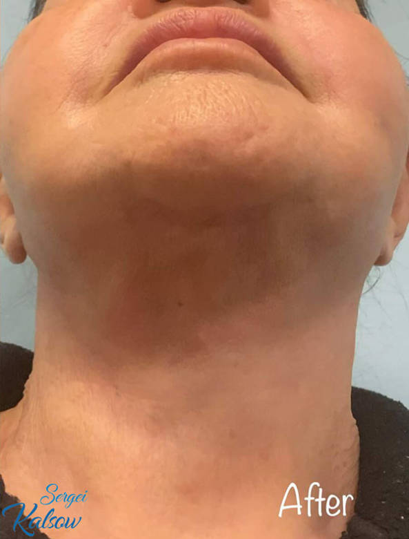 Facelift NYC_Necklift NYC_After